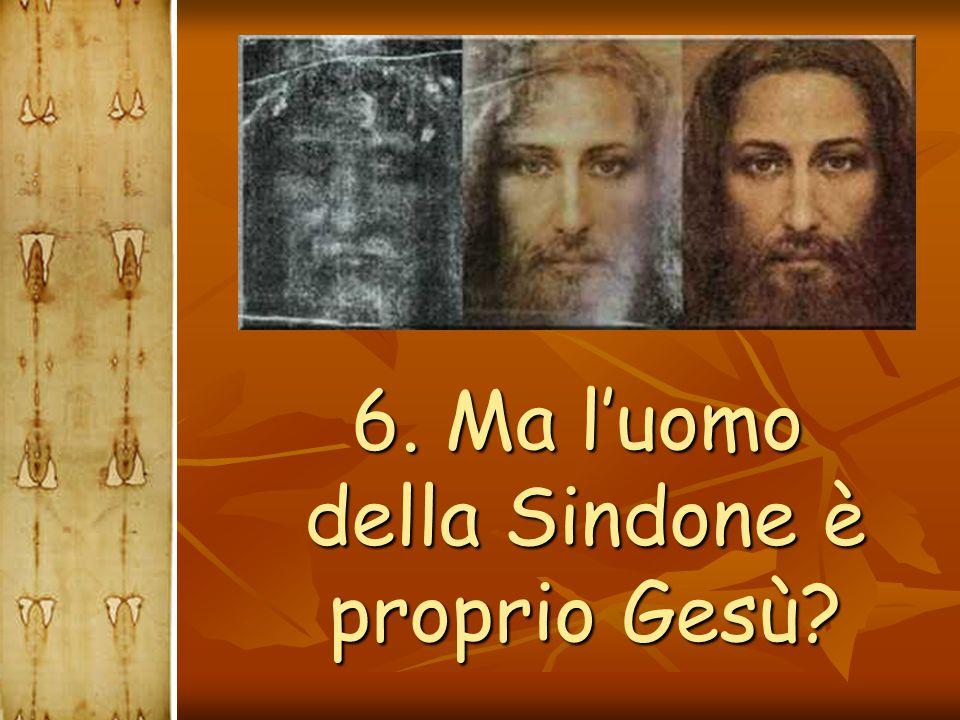 6. Ma l'uomo della Sindone è proprio Gesù? 6. Ma l'uomo della Sindone è proprio Gesù?