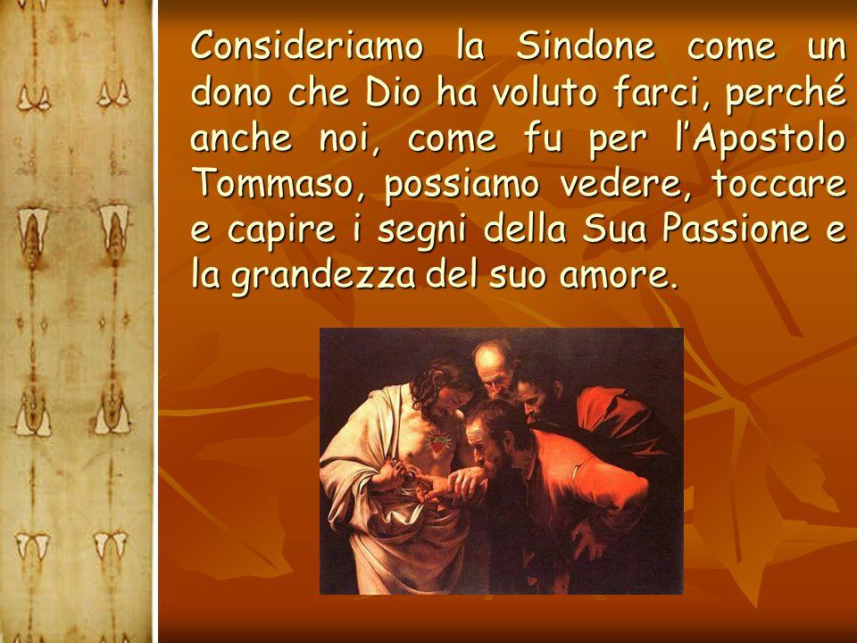  Consideriamo la Sindone come un dono che Dio ha voluto farci, perché anche noi, come fu per l'Apostolo Tommaso, possiamo vedere, toccare e capire i