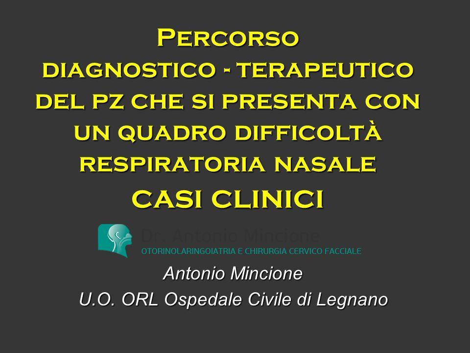 Caso clinico 5 Terapia Embolizzazione arteria mascellare interna destra