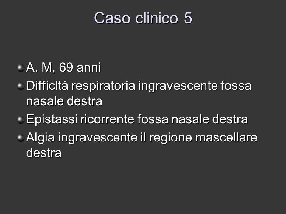 Caso clinico 5 A. M, 69 anni Difficltà respiratoria ingravescente fossa nasale destra Epistassi ricorrente fossa nasale destra Algia ingravescente il