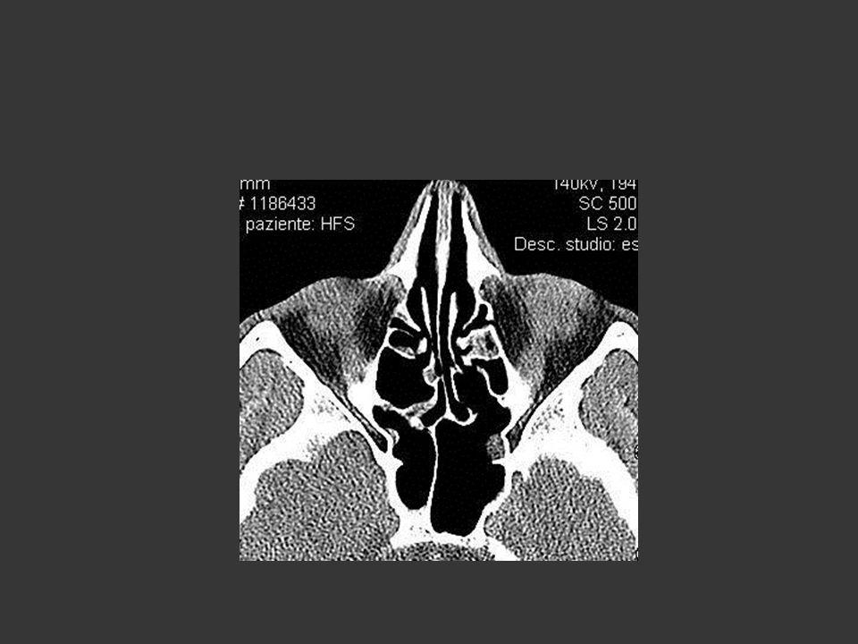 Caso clinico 6: endoscopia