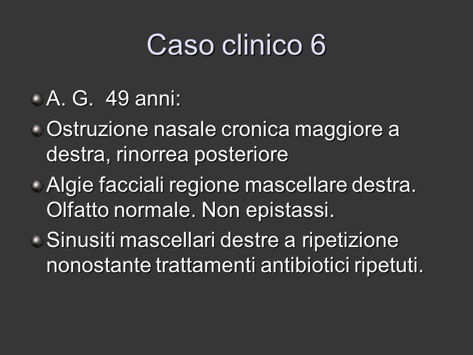 Caso clinico 6 A. G. 49 anni: Ostruzione nasale cronica maggiore a destra, rinorrea posteriore Algie facciali regione mascellare destra. Olfatto norma