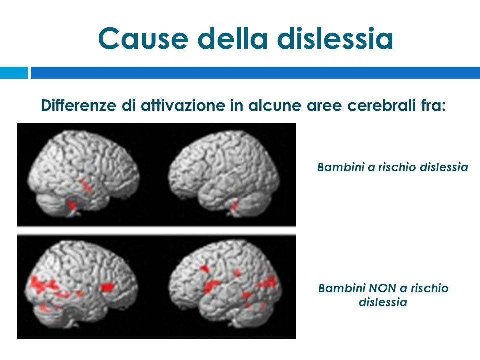 Cause della dislessia Bambini a rischio dislessia Differenze di attivazione in alcune aree cerebrali fra: Bambini NON a rischio dislessia