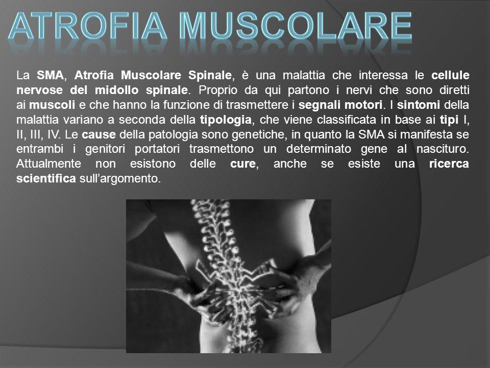 La SMA, Atrofia Muscolare Spinale, è una malattia che interessa le cellule nervose del midollo spinale. Proprio da qui partono i nervi che sono dirett