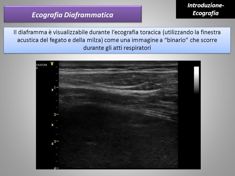 Ecografia Diaframmatica Il diaframma è visualizzabile durante l'ecografia toracica (utilizzando la finestra acustica del fegato e della milza) come un