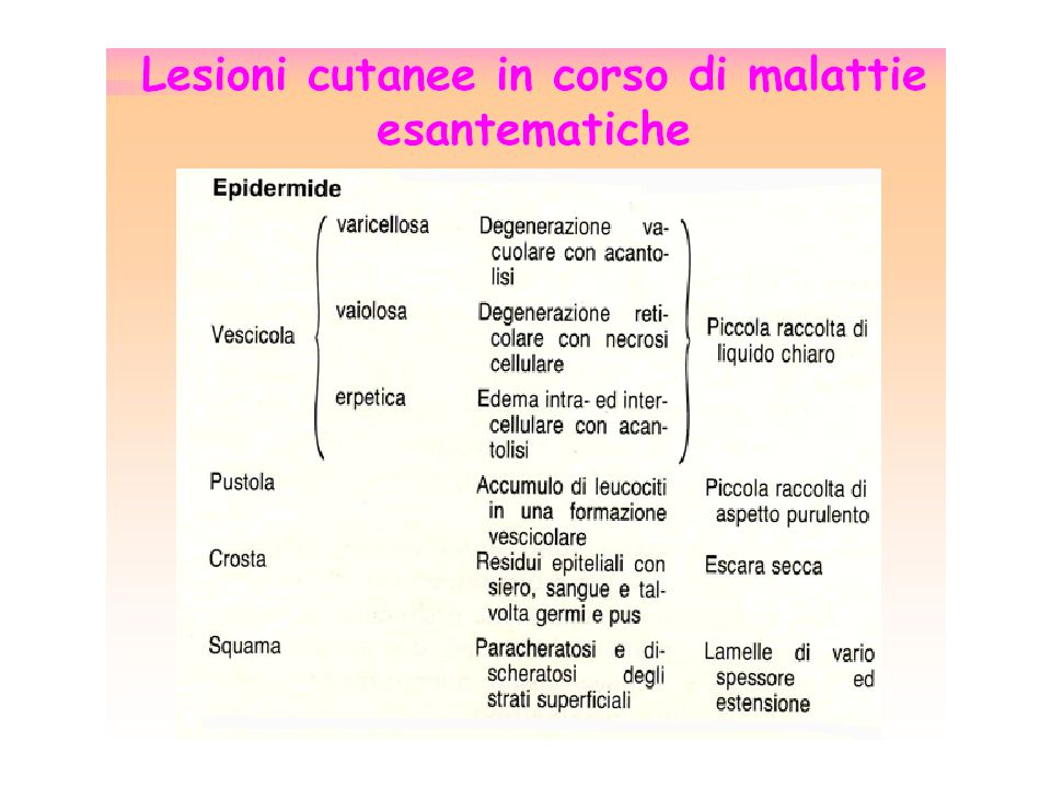 Morbillo (Paramixovirus, genere Morbillivirus) Scarlattina (Streptococcus pyogenes-gruppo A) Rosolia (Togavirus, genere Rubivirus) Varicella (Herpesviridae, VZV) Quinta Malattia (Parvovirus B19) Sesta Malattia (Human Herpesvirus 6) Febbre Bottonosa (Rickettsia conorii) Malattie esantematiche di maggiore interesse