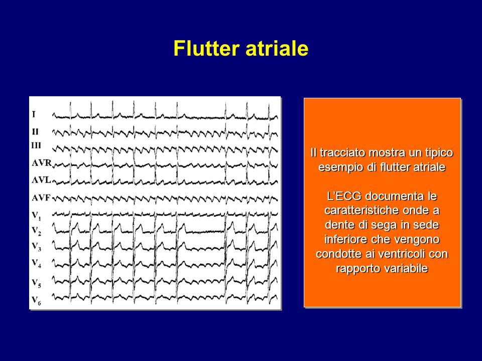 Il tracciato mostra un tipico esempio di flutter atriale L'ECG documenta le caratteristiche onde a dente di sega in sede inferiore che vengono condott