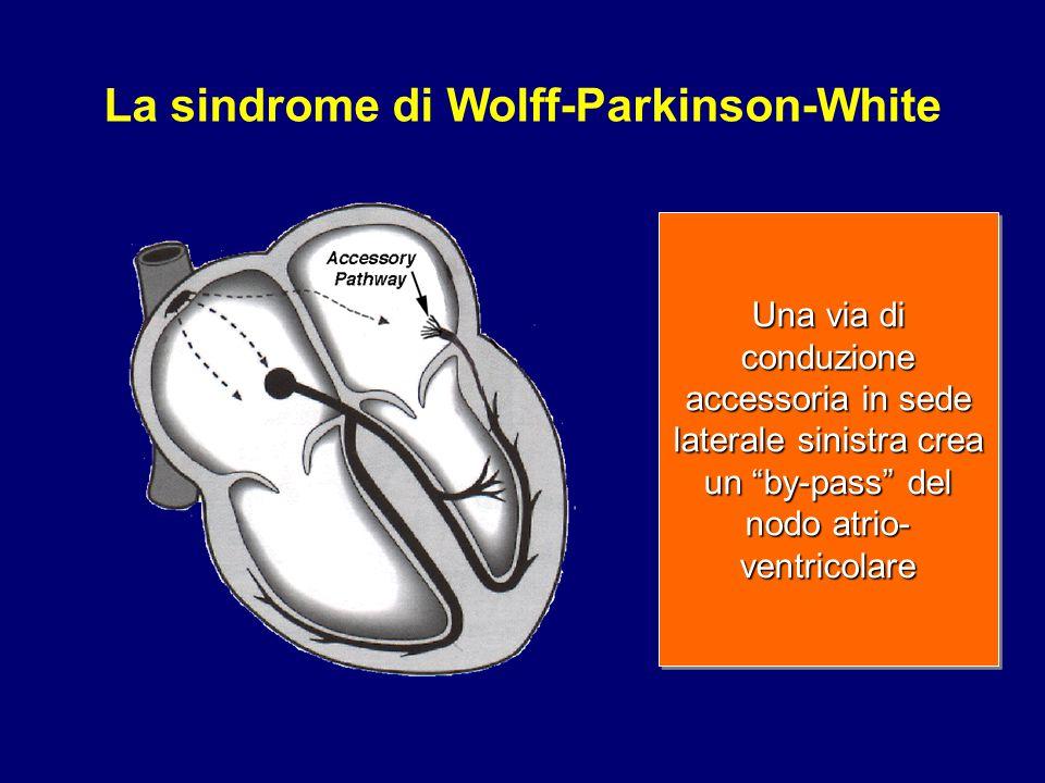 """Una via di conduzione accessoria in sede laterale sinistra crea un """"by-pass"""" del nodo atrio- ventricolare La sindrome di Wolff-Parkinson-White"""