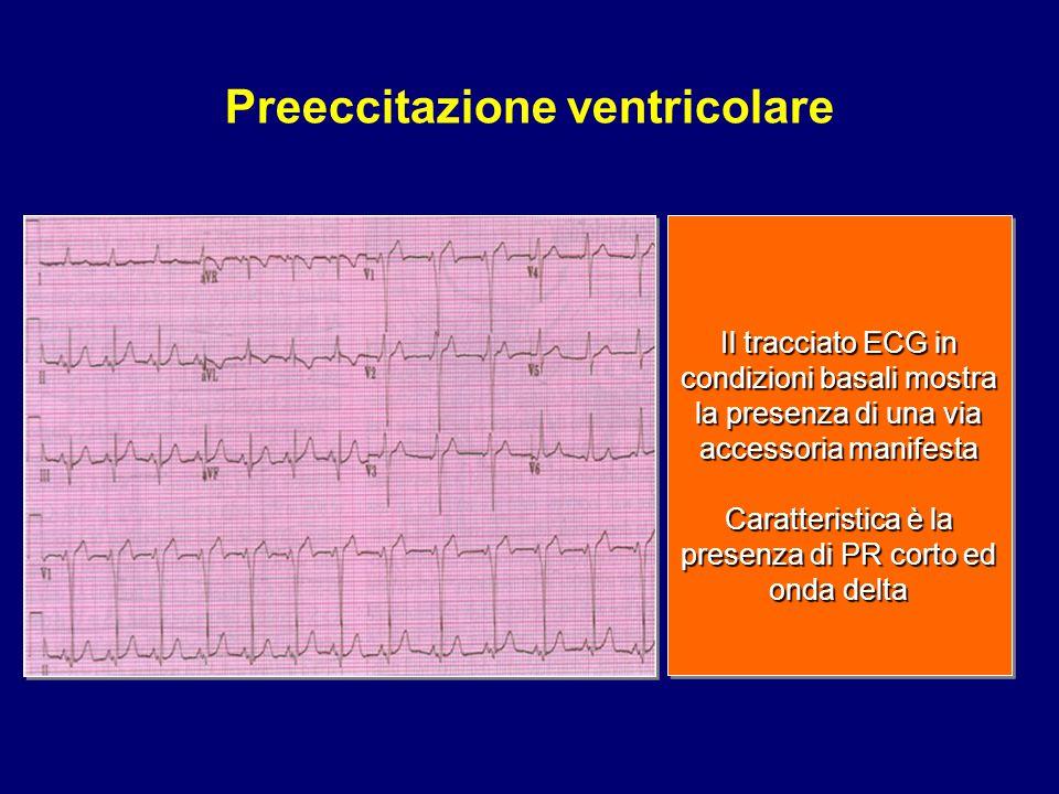 Il tracciato ECG in condizioni basali mostra la presenza di una via accessoria manifesta Caratteristica è la presenza di PR corto ed onda delta Il tra