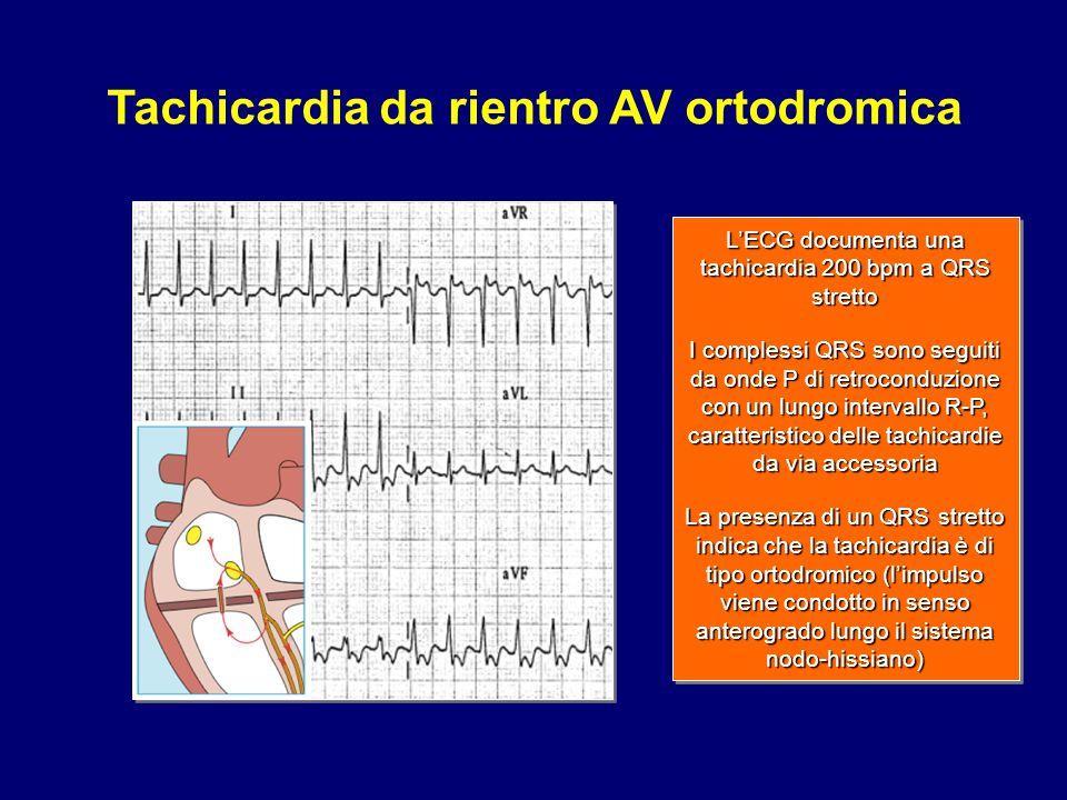 L'ECG documenta una tachicardia 200 bpm a QRS stretto I complessi QRS sono seguiti da onde P di retroconduzione con un lungo intervallo R-P, caratteri