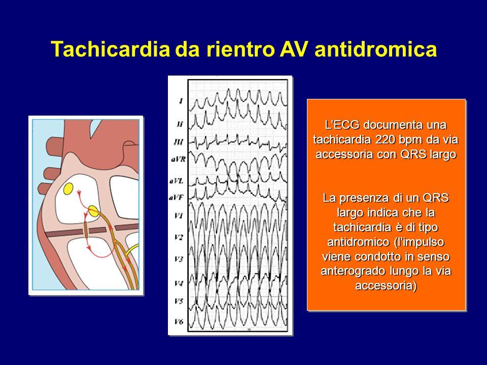 L'ECG documenta una tachicardia 220 bpm da via accessoria con QRS largo La presenza di un QRS largo indica che la tachicardia è di tipo antidromico (l