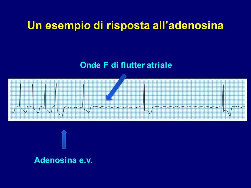 Adenosina e.v. Onde F di flutter atriale Un esempio di risposta all'adenosina