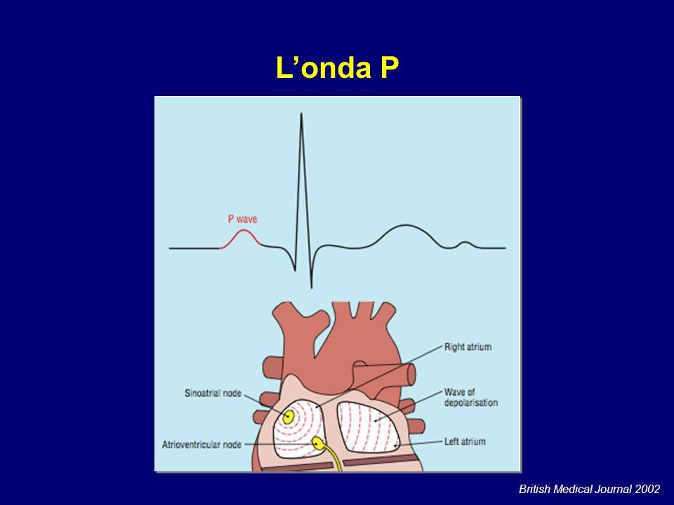 Tachicardia a QRS stretto regolare ADENOSINA E.V.