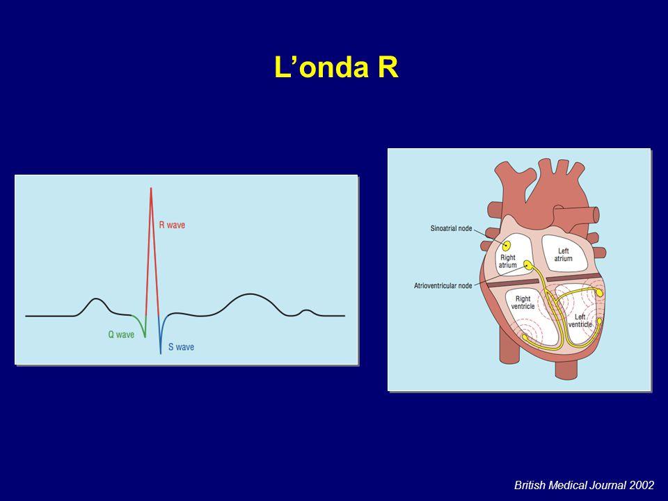 British Medical Journal 2002 L'onda R
