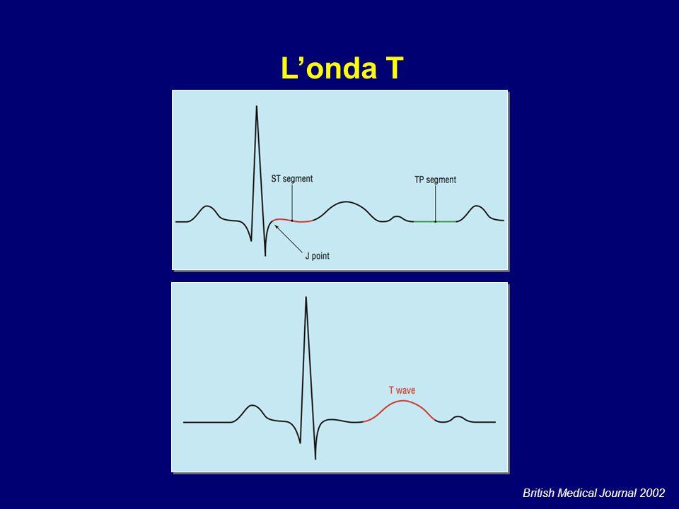 Tachicardia sinusale Flutter atriale L'onda T