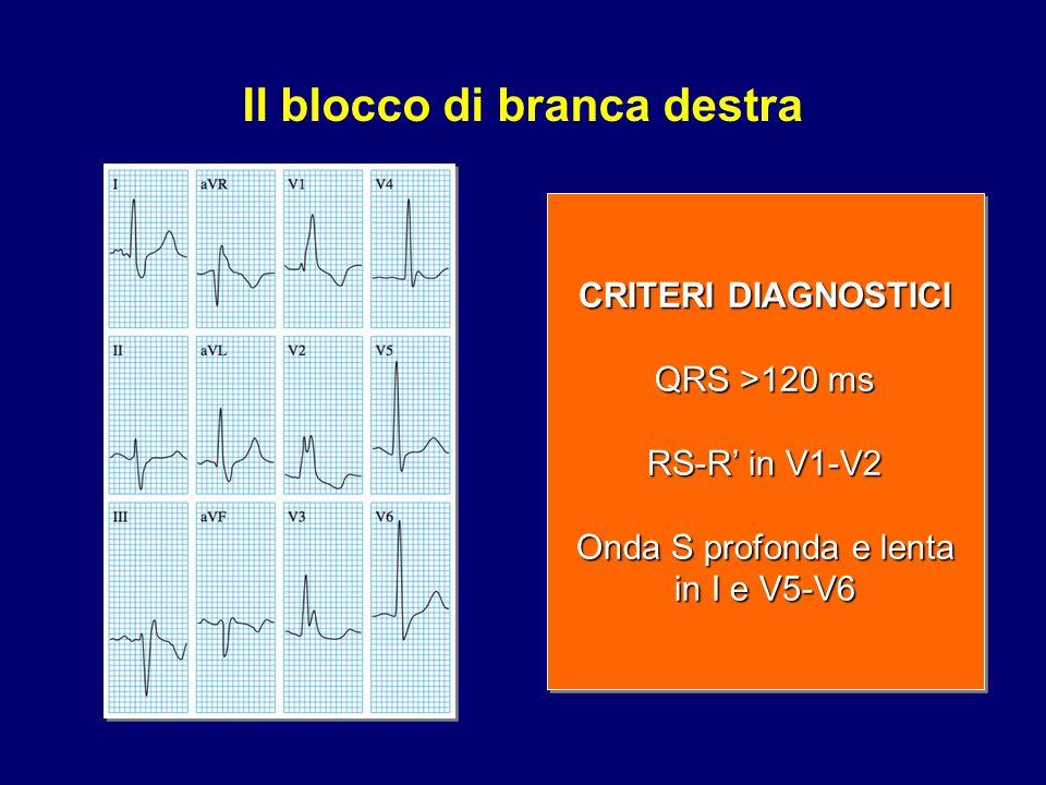 Il blocco di branca sinistra CRITERI DIAGNOSTICI QRS >120 ms Ampia onda R monofasica in I, e V5-V6 Onda Q assente in V5-V6 CRITERI DIAGNOSTICI QRS >120 ms Ampia onda R monofasica in I, e V5-V6 Onda Q assente in V5-V6