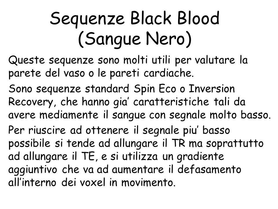 Sequenze Black Blood (Sangue Nero) Queste sequenze sono molti utili per valutare la parete del vaso o le pareti cardiache. Sono sequenze standard Spin