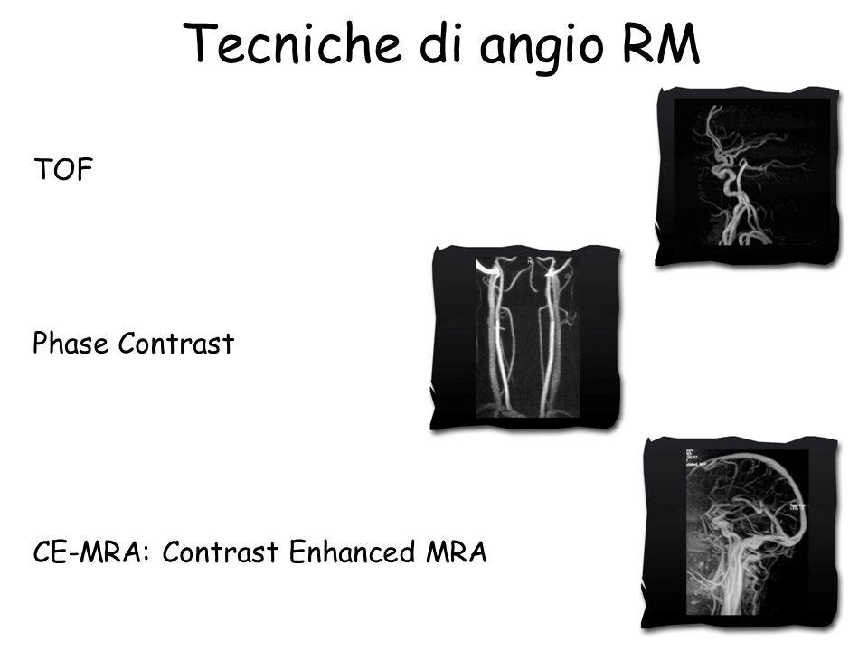 Tecniche di angio RM TOF Phase Contrast CE-MRA: Contrast Enhanced MRA