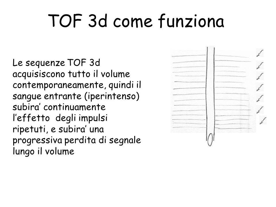 TOF 3d come funziona Le sequenze TOF 3d acquisiscono tutto il volume contemporaneamente, quindi il sangue entrante (iperintenso) subira' continuamente