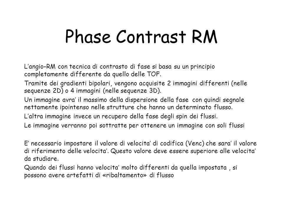 Phase Contrast RM L'angio-RM con tecnica di contrasto di fase si basa su un principio completamente differente da quello delle TOF. Tramite dei gradie