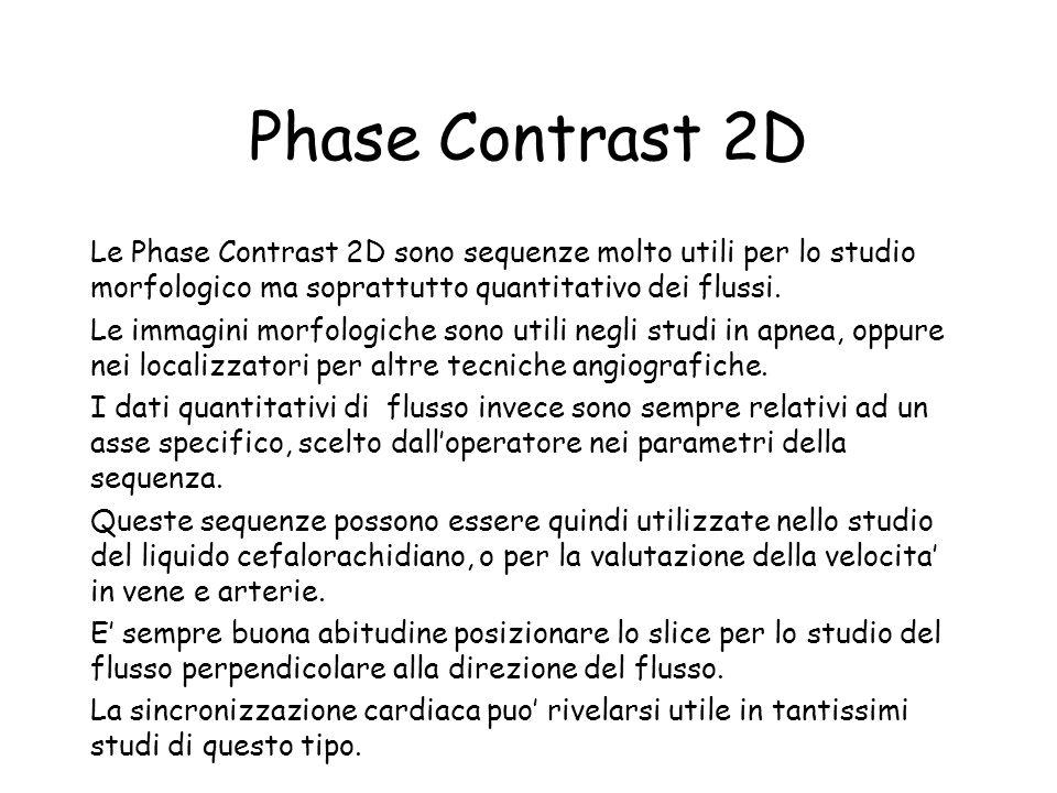 Phase Contrast 2D Le Phase Contrast 2D sono sequenze molto utili per lo studio morfologico ma soprattutto quantitativo dei flussi. Le immagini morfolo