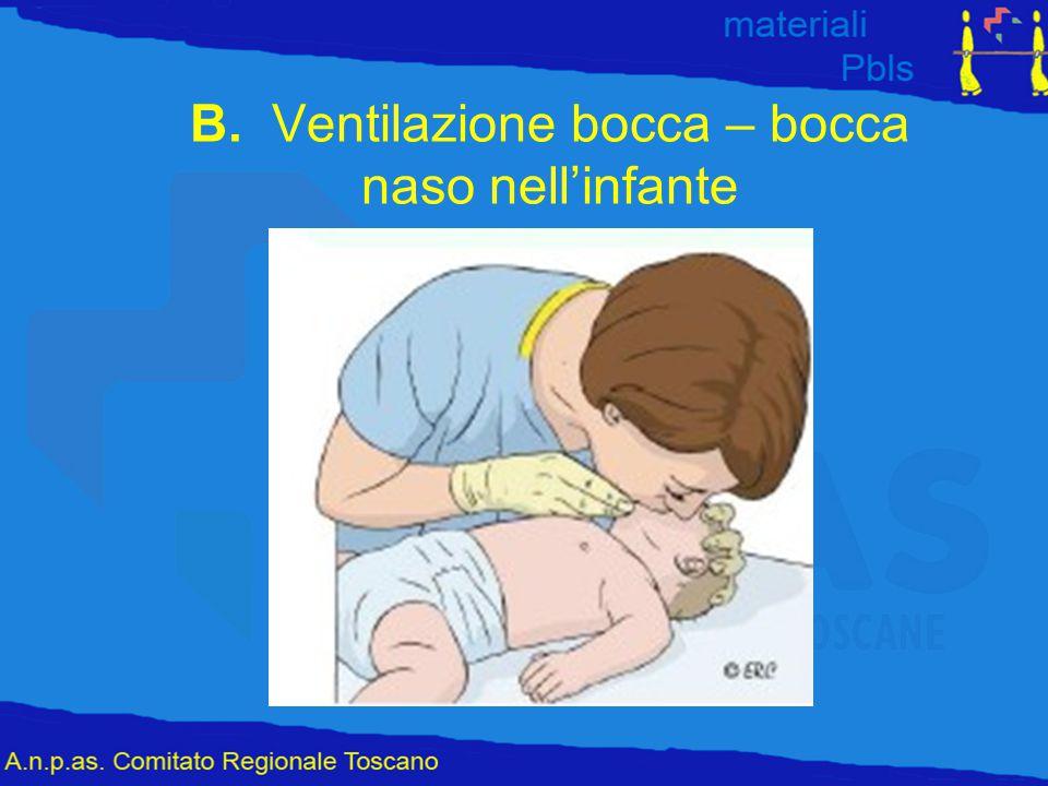 B. Ventilazione bocca – bocca naso nell'infante