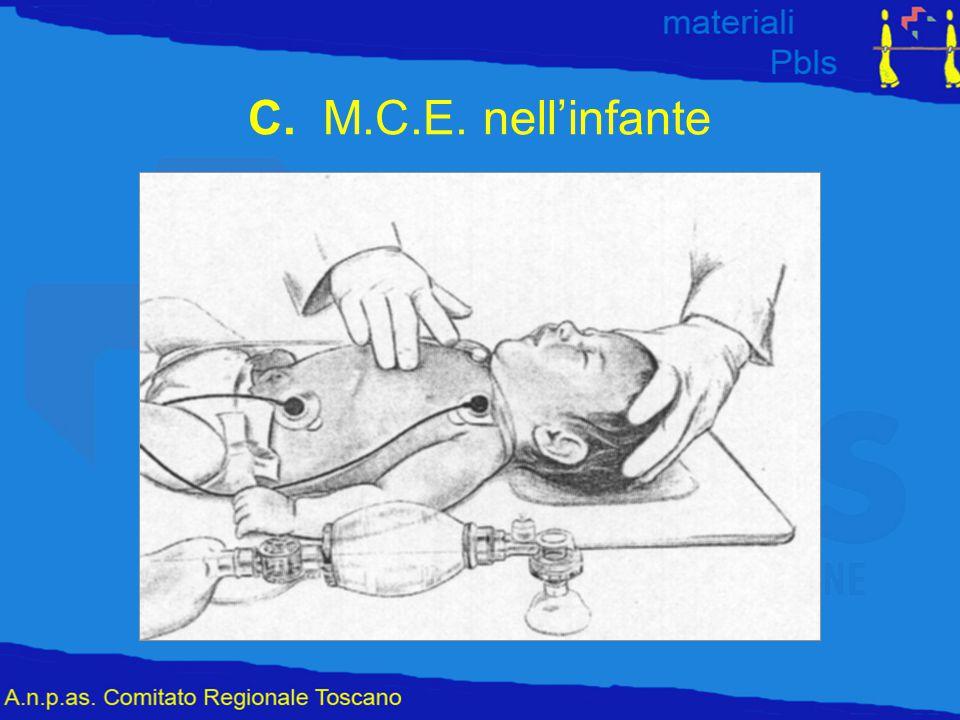C. M.C.E. nell'infante