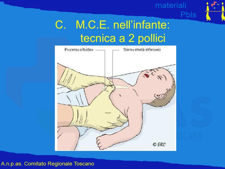 C.M.C.E. nell'infante: tecnica a 2 pollici