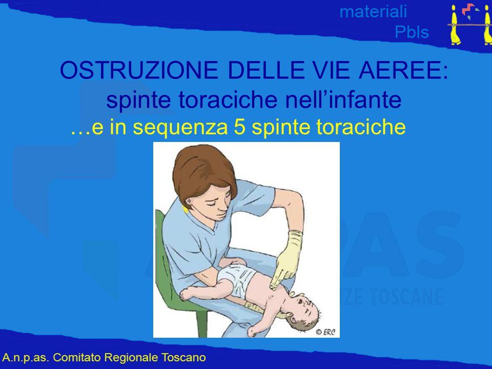 OSTRUZIONE DELLE VIE AEREE: spinte toraciche nell'infante …e in sequenza 5 spinte toraciche