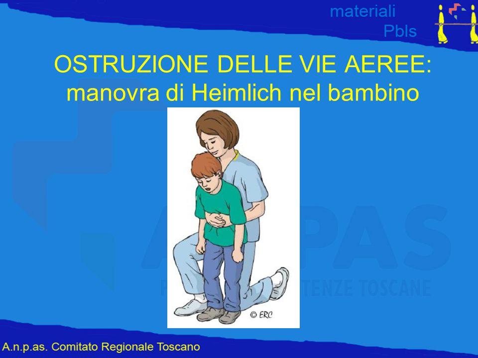 OSTRUZIONE DELLE VIE AEREE: manovra di Heimlich nel bambino