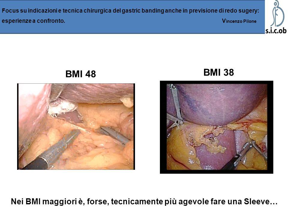 BMI 48 BMI 38 Focus su indicazioni e tecnica chirurgica del gastric banding anche in previsione di redo sugery: esperienze a confronto. V incenzo Pilo