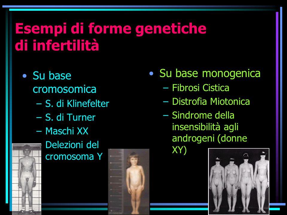 Esempi di forme genetiche di infertilità Su base cromosomica –S.