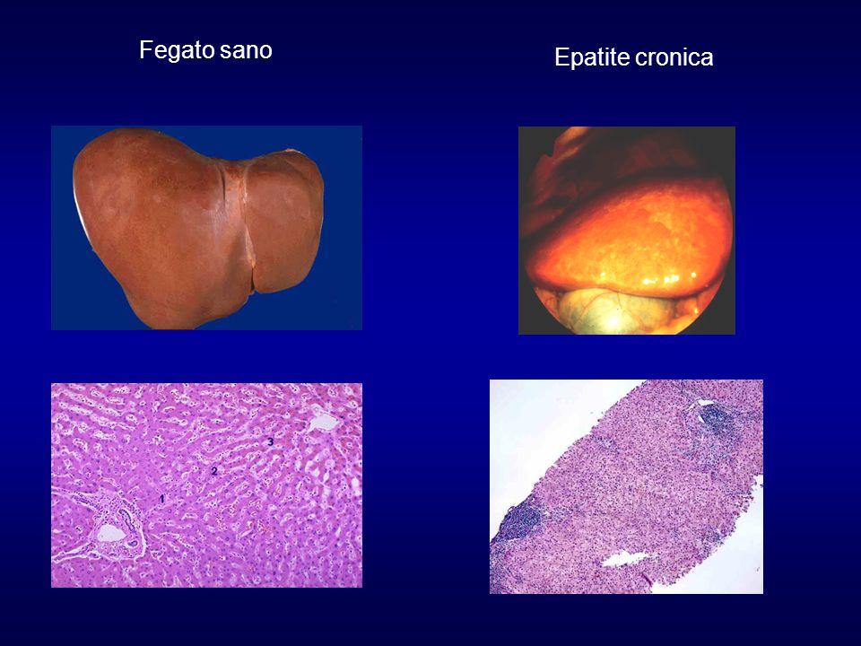Razionale per l'impiego della biopsia epatica nella diagnosi dell'epatite cronica Effettuare una diagnosi di certezza Stabilire il grado di severità e di evolutività Verificare l'eziologia Escludere altre condizioni patologiche Identificare i marcatori virali sul tessuto