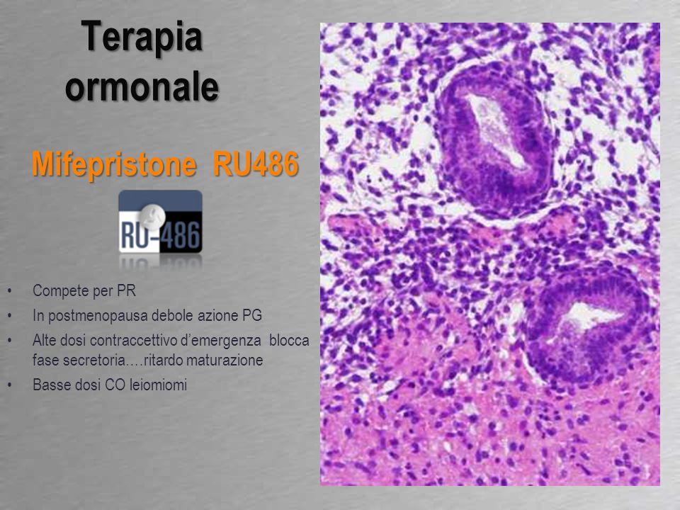 Compete per PR In postmenopausa debole azione PG Alte dosi contraccettivo d'emergenza blocca fase secretoria….ritardo maturazione Basse dosi CO leiomi