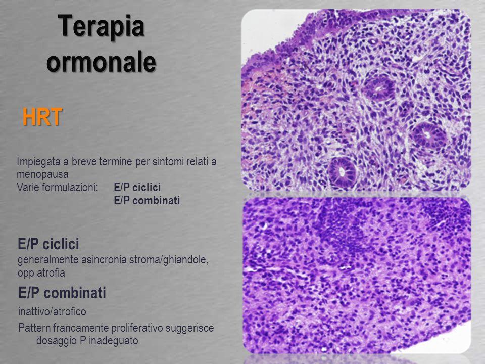 E/P combinati inattivo/atrofico Pattern francamente proliferativo suggerisce dosaggio P inadeguato Terapia ormonale HRT Impiegata a breve termine per