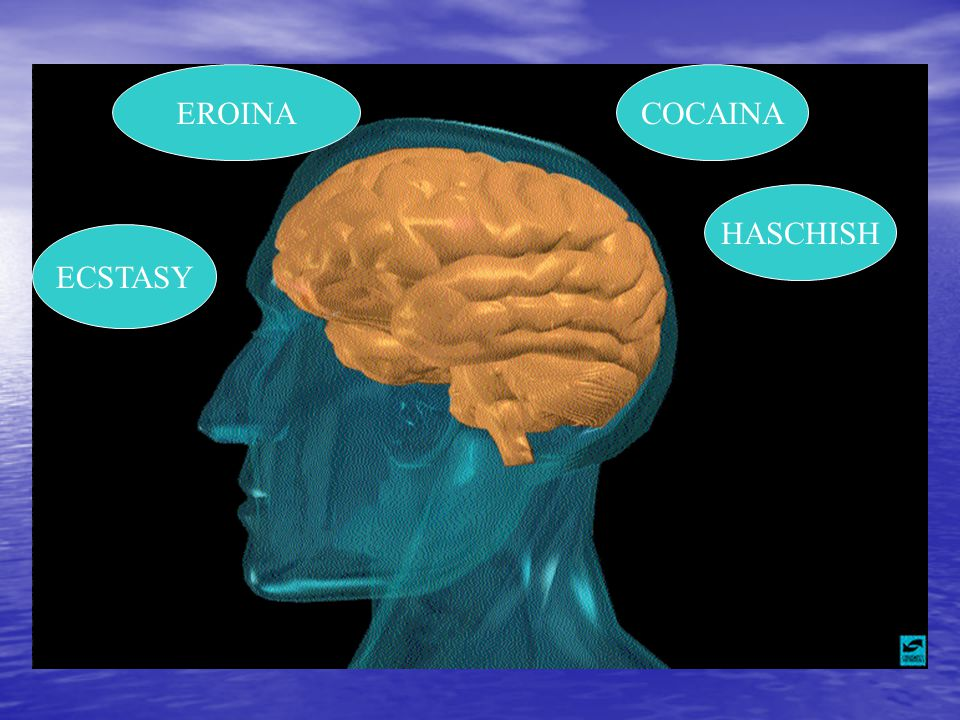 La cocaina provoca vasocostrizione Infarto del cuore ictus emorragie cerebrali MORTE