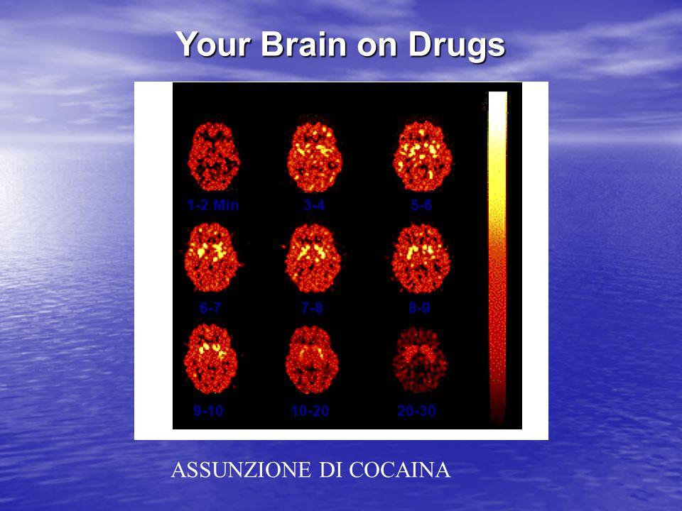 Meccanismo di azione dell'LSD Mima la azione della serotonina LSD