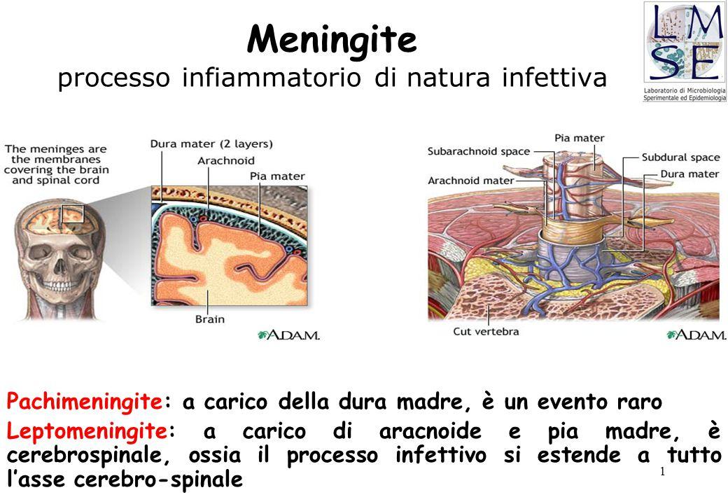 1 Meningite processo infiammatorio di natura infettiva Pachimeningite: a carico della dura madre, è un evento raro Leptomeningite: a carico di aracnoi