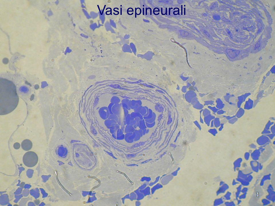 Vasi epineurali