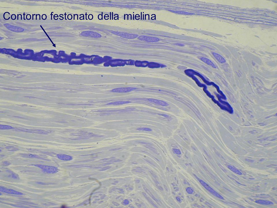 Contorno festonato della mielina