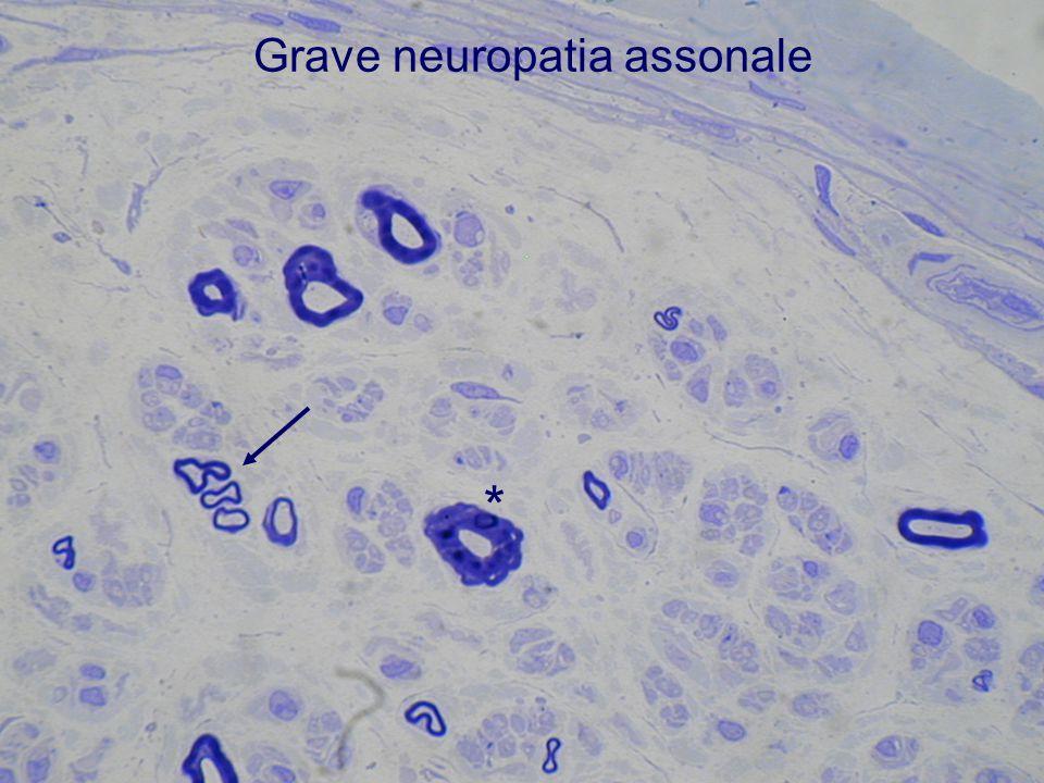 Grave neuropatia assonale *