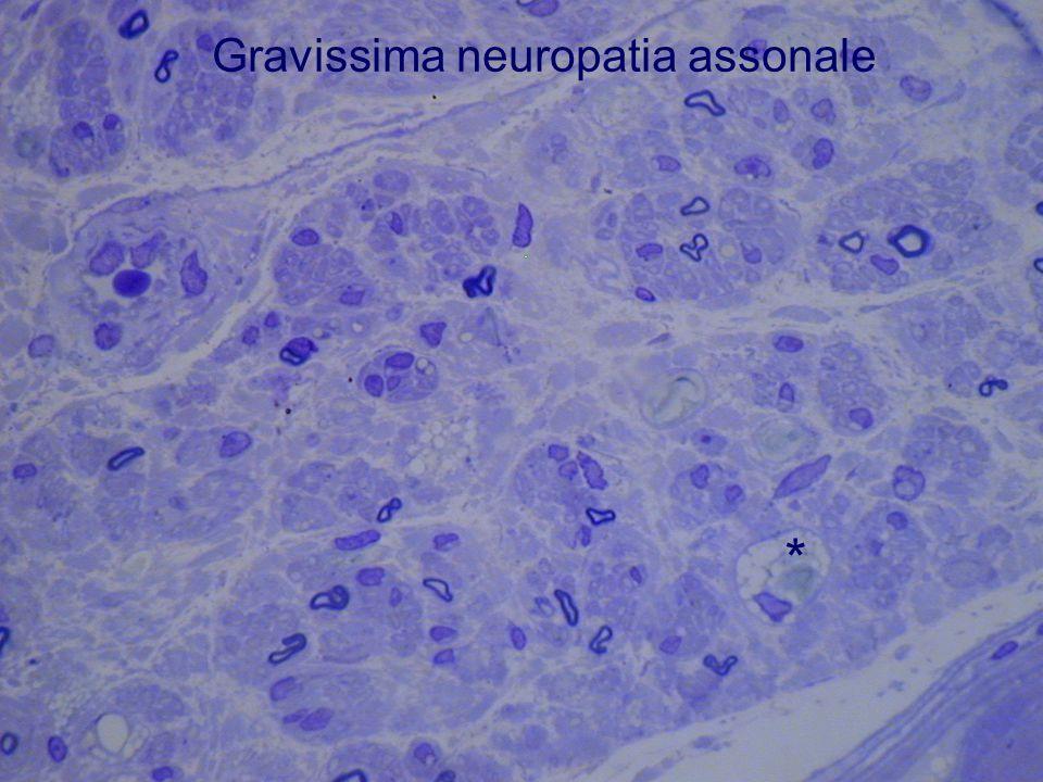 Gravissima neuropatia assonale *