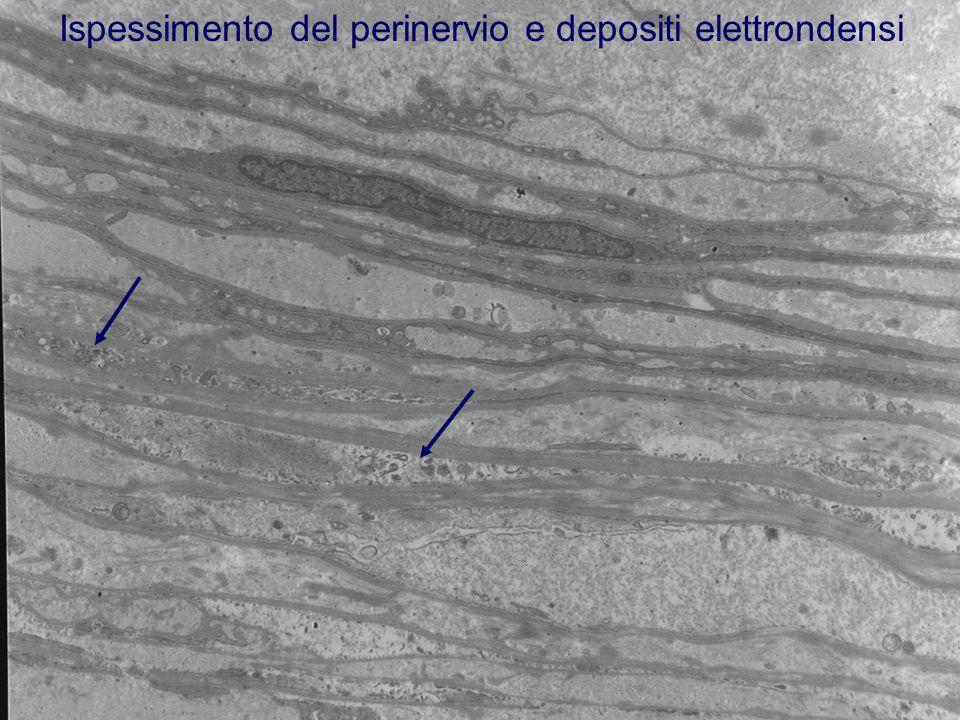 Ispessimento del perinervio e depositi elettrondensi