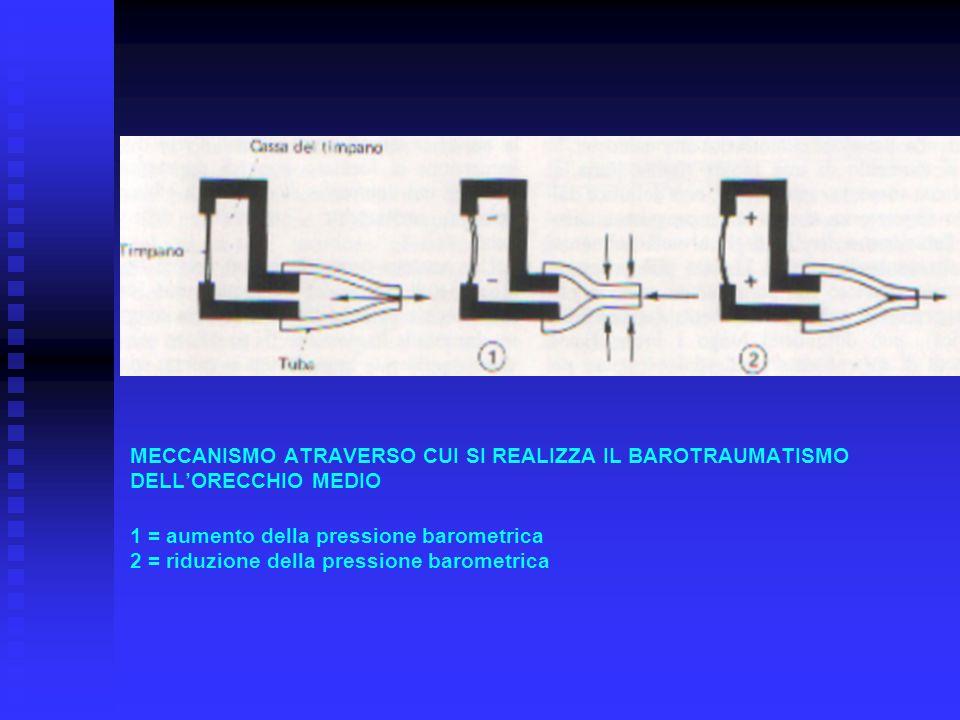MECCANISMO ATRAVERSO CUI SI REALIZZA IL BAROTRAUMATISMO DELL'ORECCHIO MEDIO 1 = aumento della pressione barometrica 2 = riduzione della pressione baro