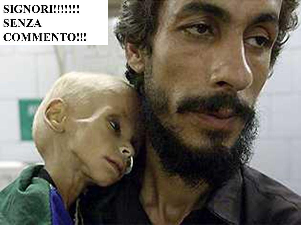 IL NUMERO DEI BAMBINI E DELLE DONNE MORTE SUPERA L' IMMAGINABILE!!! VOGLIAMO PIU' SANGUE???? IL NUMERO DEI BAMBINI E DELLE DONNE MORTE SUPERA L' IMMAG