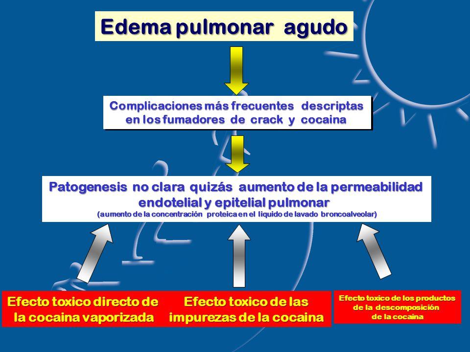 Edema pulmonar agudo Complicaciones más frecuentes descriptas en los fumadores de crack y cocaina Complicaciones más frecuentes descriptas en los fumadores de crack y cocaina Efecto toxico directo de la cocaina vaporizada Efecto toxico de las impurezas de la cocaina Efecto toxico de los productos de la descomposición de la cocaina Patogenesis no clara quizás aumento de la permeabilidad endotelial y epitelial pulmonar (aumento de la concentración proteica en el liquido de lavado broncoalveolar)