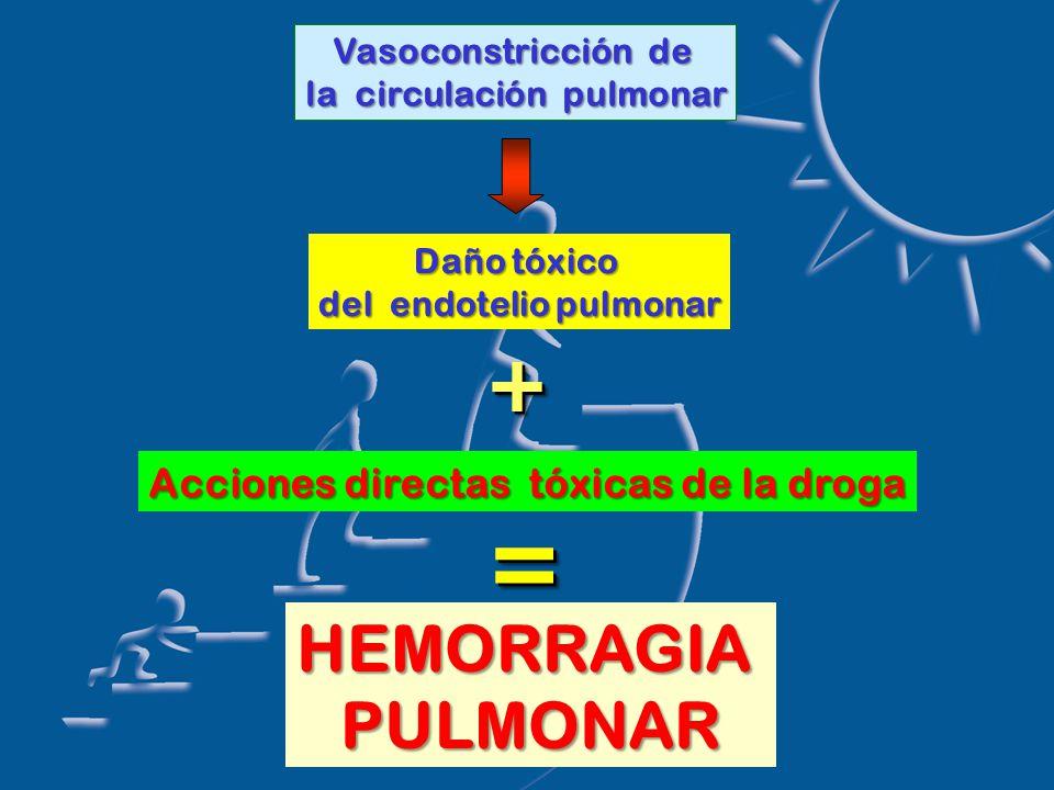 Vasoconstricción de la circulación pulmonar Daño tóxico del endotelio pulmonar ++ Acciones directas tóxicas de la droga == HEMORRAGIAPULMONAR