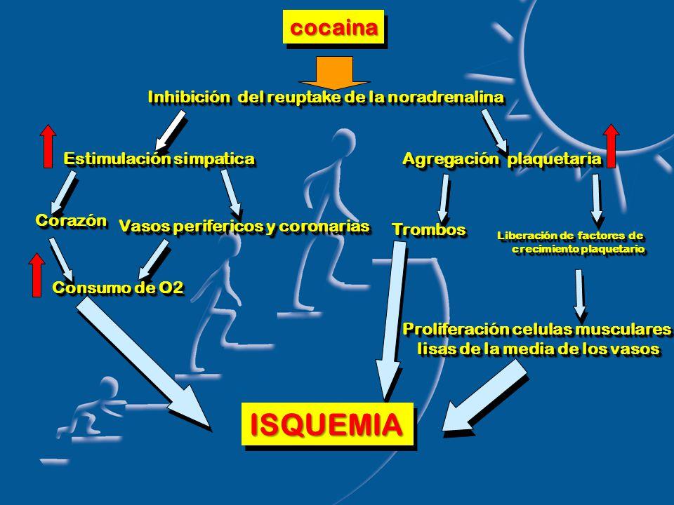 cocainacocaina Inhibición del reuptake de la noradrenalina Estimulación simpatica Agregación plaquetaria CorazónCorazón Vasos perifericos y coronarias Consumo de O2 TrombosTrombos Liberación de factores de crecimiento plaquetario crecimiento plaquetario Liberación de factores de crecimiento plaquetario crecimiento plaquetario Proliferación celulas musculares lisas de la media de los vasos Proliferación celulas musculares lisas de la media de los vasos ISQUEMIAISQUEMIA