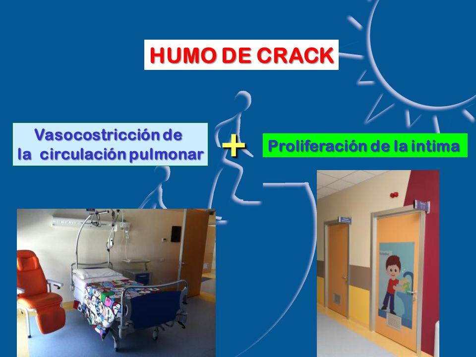 Vasocostricción de la circulación pulmonar ++ Proliferación de la intima HUMO DE CRACK