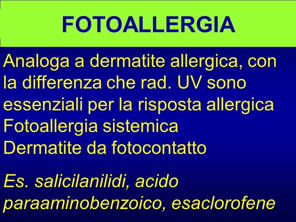 FOTOALLERGIA Analoga a dermatite allergica, con la differenza che rad. UV sono essenziali per la risposta allergica Fotoallergia sistemica Dermatite d